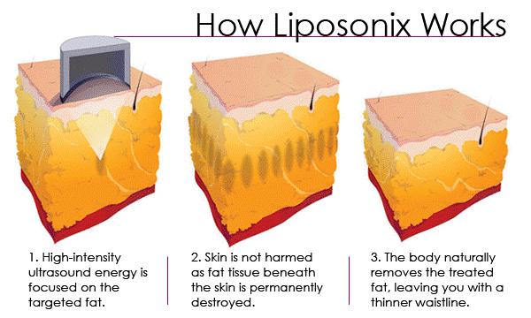 痩身マシン ライポソニックス liposonixの原理